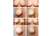 breast-lift-01